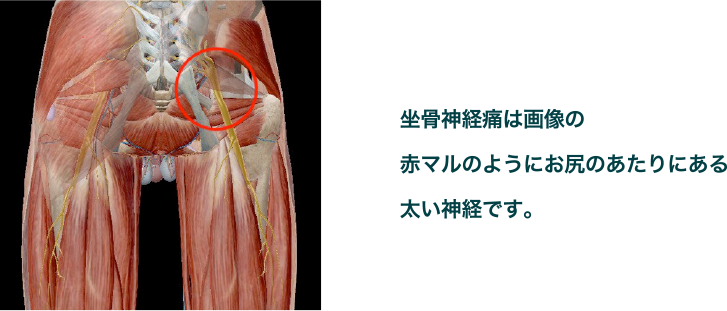 坐骨神経痛の画像